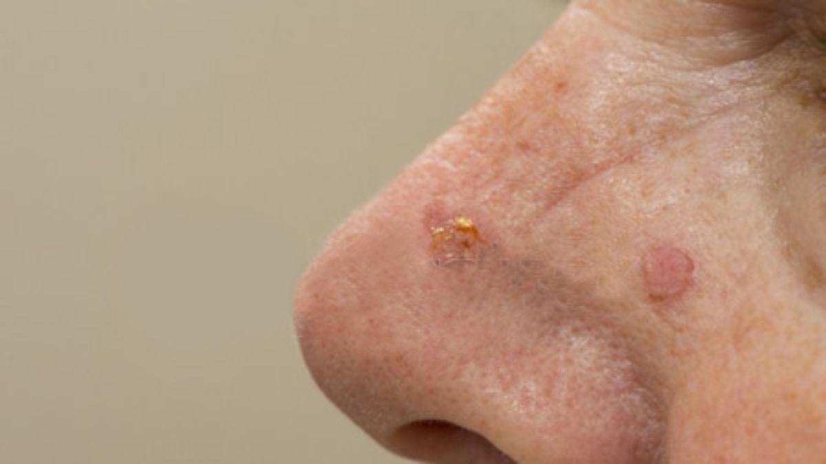 Ambulatório de tumores da pele da face